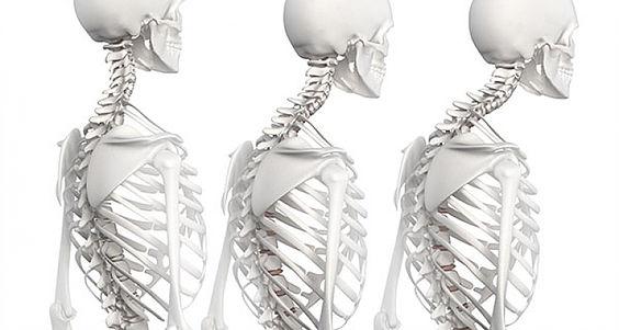Hipercifosis dorsal. ¿Qué es? Causas, síntomas, diagnóstico y tratamiento o corrección por medio del yoga