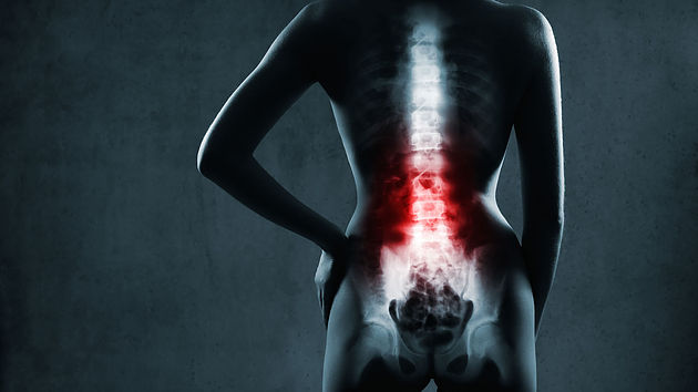 Diez aspectos a tener en cuenta si padeces de dolor lumbar a menudo. Dolor lumbar, sobre carga y postura