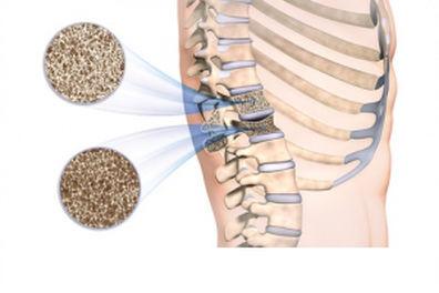 Fisioterapia: una alternativa eficaz para combatir la osteoporosis