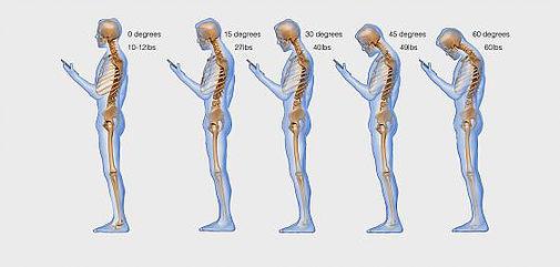 Text neck. Repercusiones del uso del smartphone sobre el organismo